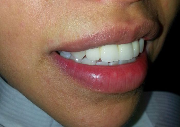 Ceramic Crowns After Photo
