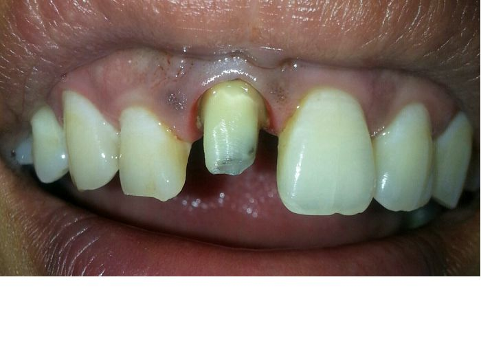 A Fructured Front Tooth Incisor