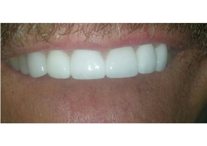 Emax Crown After Delivery to Patients Mouth