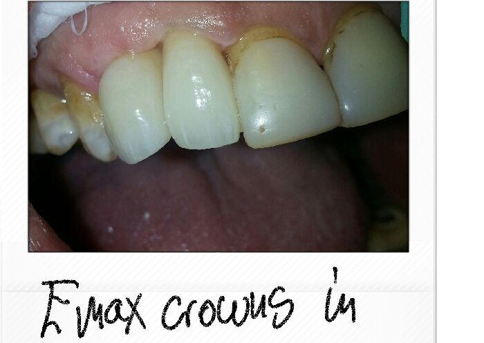 Emax Crowns In Place