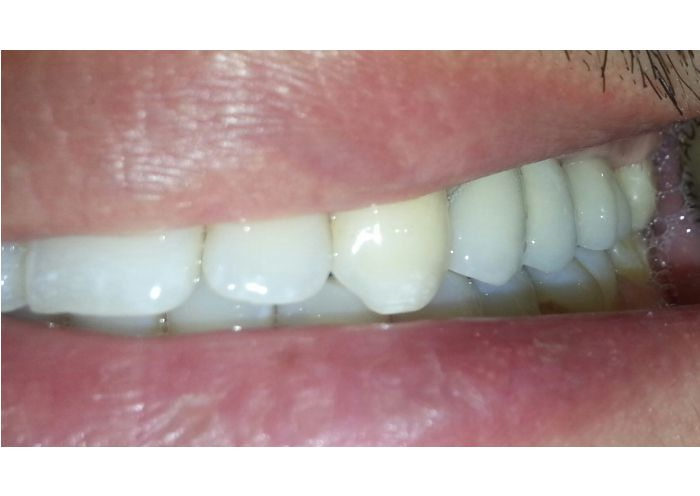 Implant Supported Bridge Photo After - Case 2