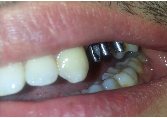 Implant Supported Bridge Photo Before Case 2