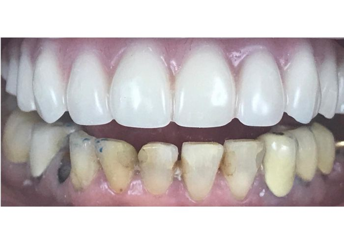 Implants Supported Bridge After Photo
