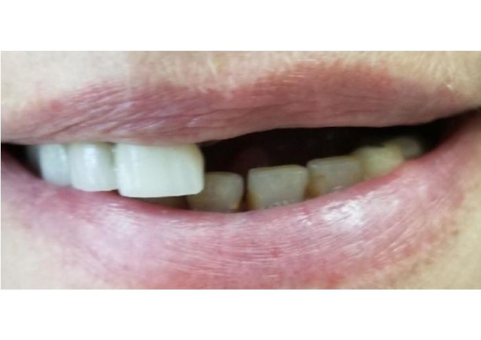 Implants Supported Bridge Before Photo