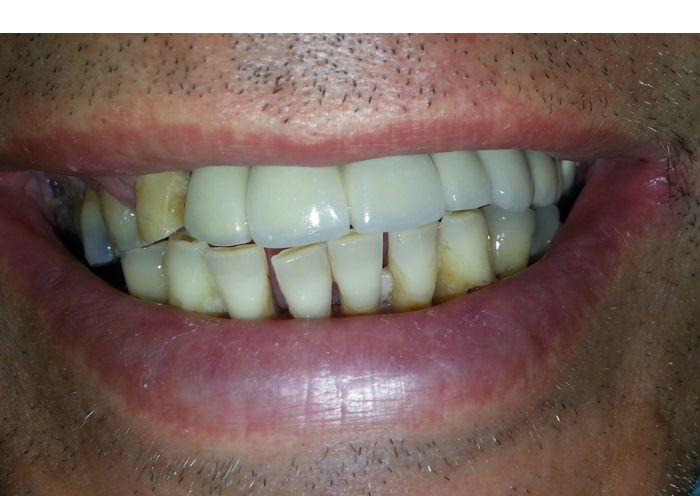 Implant Supported Bridge Photo After