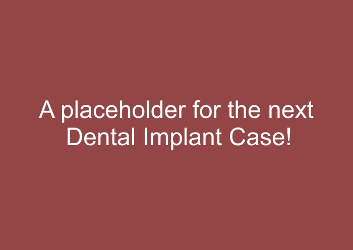 Placeholder for next Dental Implant Case